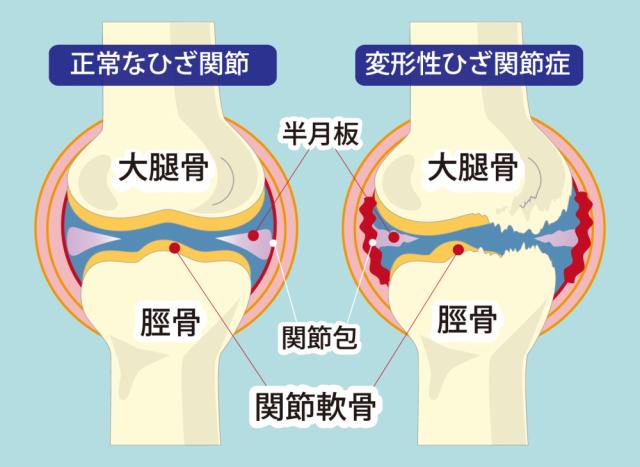 膝関節症へのアプローチ法は?
