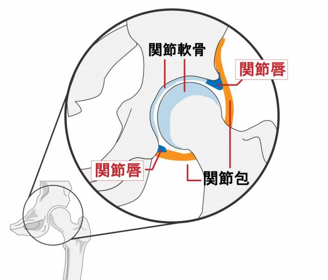 変形性股関節症改善の施術で大切にしていることは?
