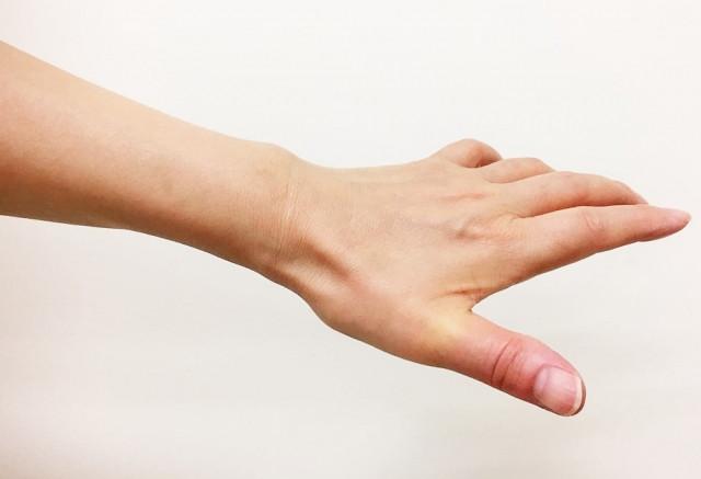 バネ指の施術で気をつけていることとは?
