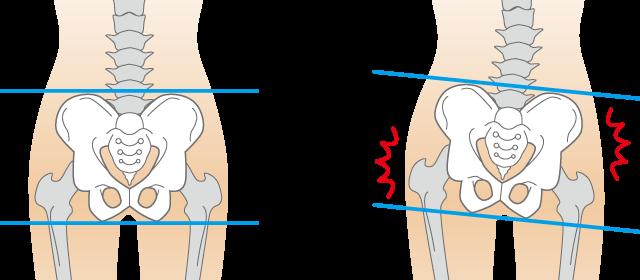 骨盤の開きが様々な症状につながります。