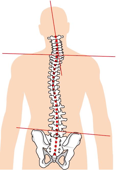 背骨や骨盤の歪みは頭痛の原因になります。