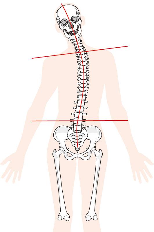 体の歪みが肋間神経痛の原因です。