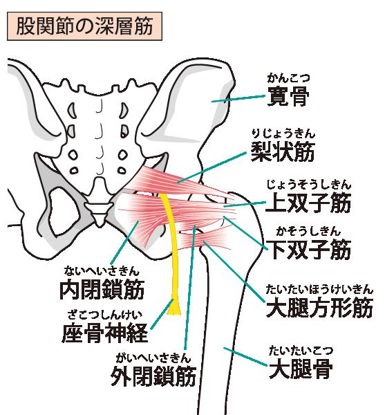 坐骨神経痛のイラスト